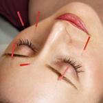 acupuncturethumbnail