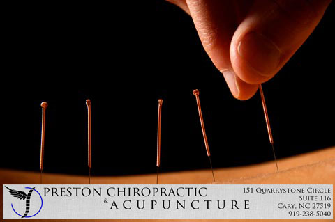 preston-cary-nc-acupuncture
