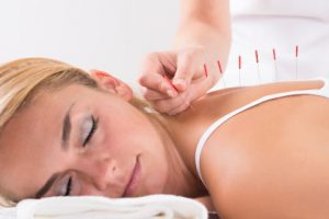 accupuncture cary nc