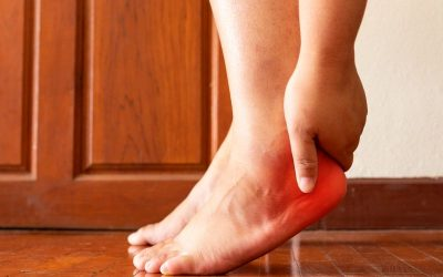 Plantar Fasciitis – What You Need To Know
